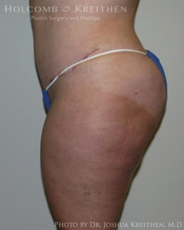 Abdominoplasty Gallery - Patient 6236480 - Image 4