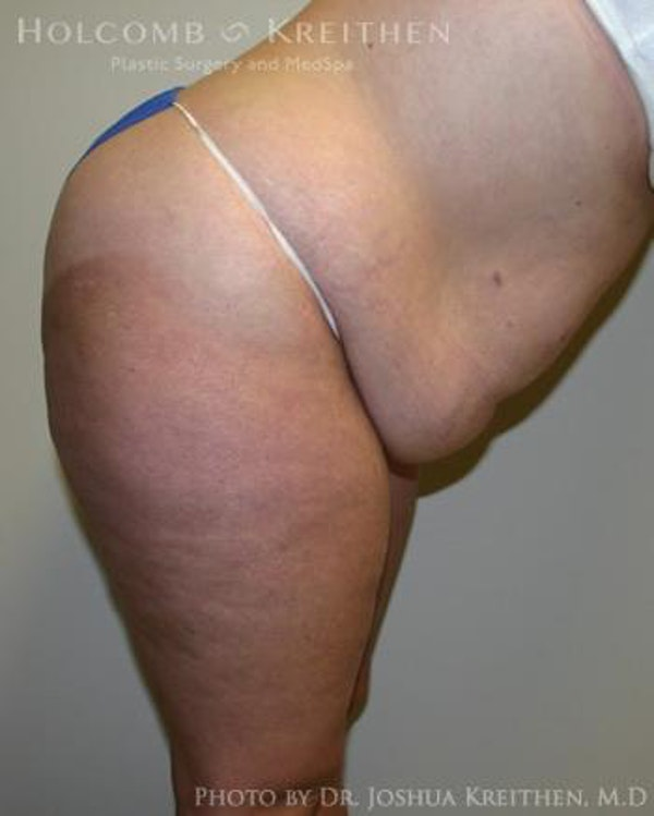 Abdominoplasty Gallery - Patient 6236480 - Image 5