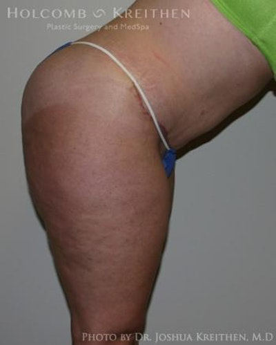 Abdominoplasty Gallery - Patient 6236480 - Image 6