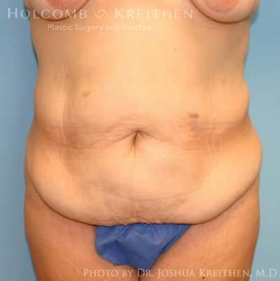 Abdominoplasty Gallery - Patient 6236484 - Image 1