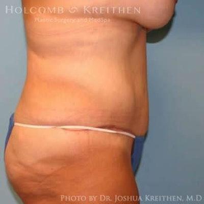 Abdominoplasty Gallery - Patient 6236484 - Image 4