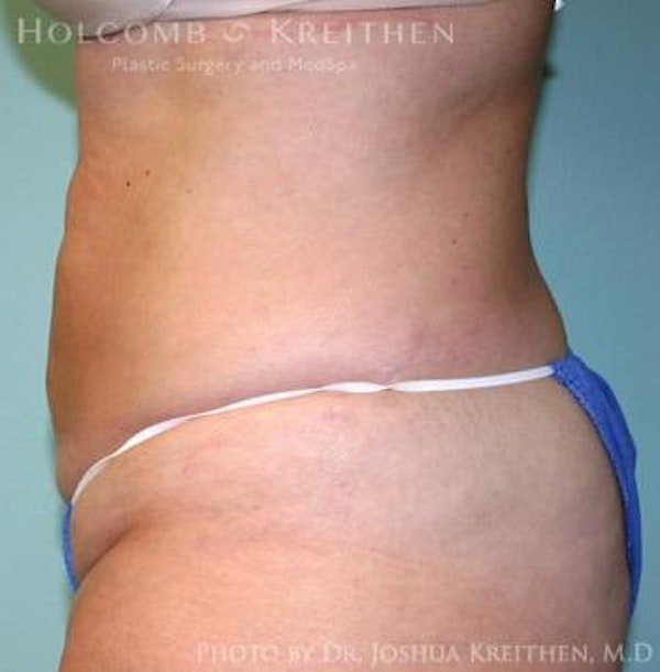 Liposuction Gallery - Patient 6236511 - Image 2