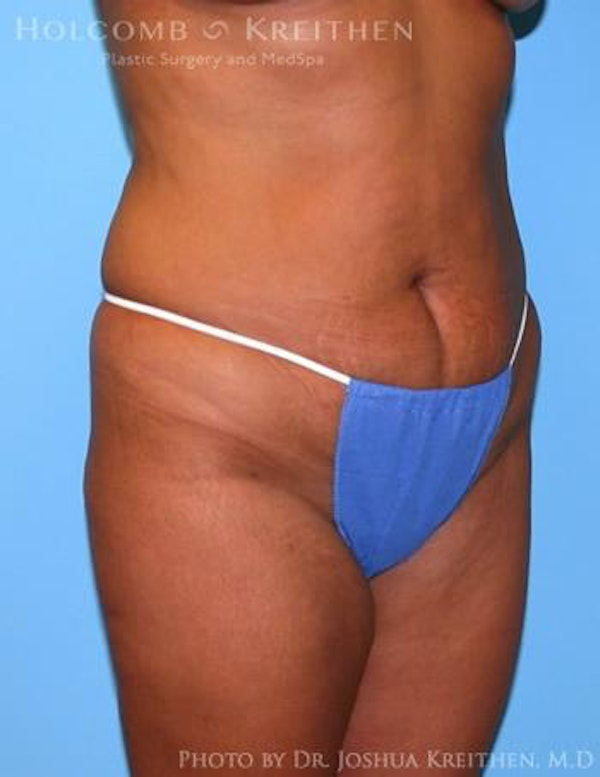 Liposuction Gallery - Patient 6236512 - Image 1