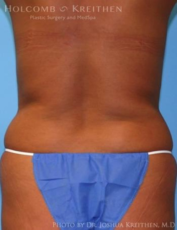 Liposuction Gallery - Patient 6236512 - Image 3