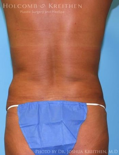 Liposuction Gallery - Patient 6236512 - Image 4