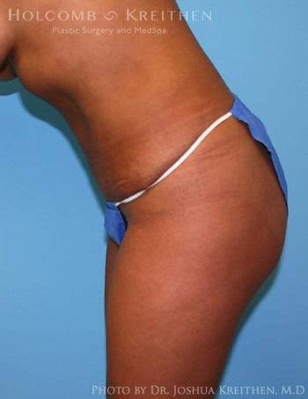 Liposuction Gallery - Patient 6236512 - Image 6