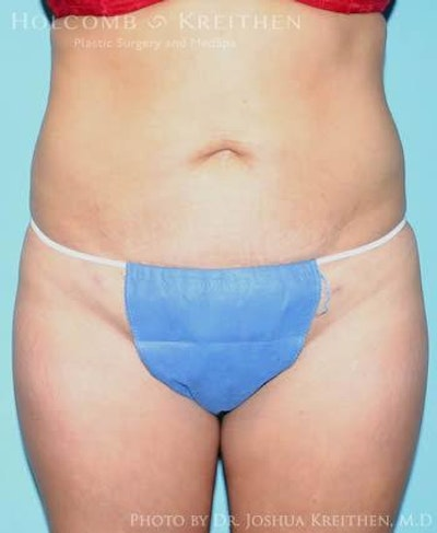 Liposuction Gallery - Patient 6236513 - Image 2