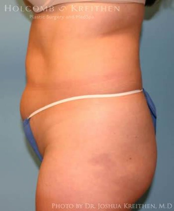Liposuction Gallery - Patient 6236513 - Image 3