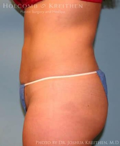 Liposuction Gallery - Patient 6236513 - Image 4