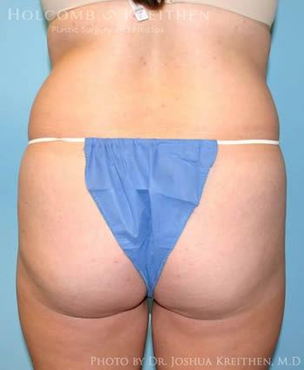 Liposuction Gallery - Patient 6236513 - Image 5