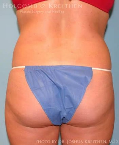 Liposuction Gallery - Patient 6236513 - Image 6