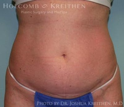 Liposuction Gallery - Patient 6236516 - Image 1