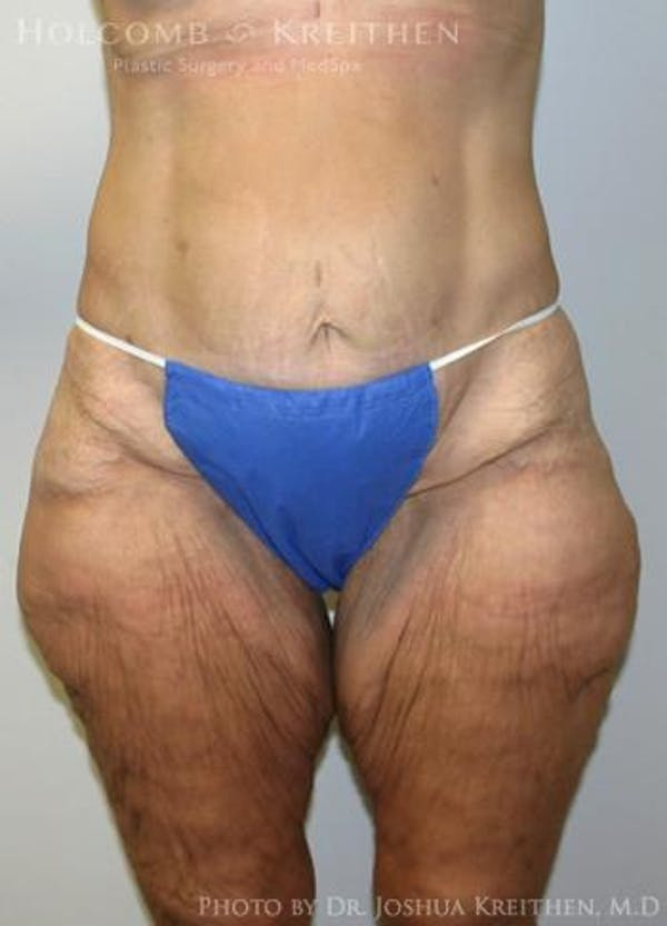 Lower Body Lift Gallery - Patient 6236517 - Image 1