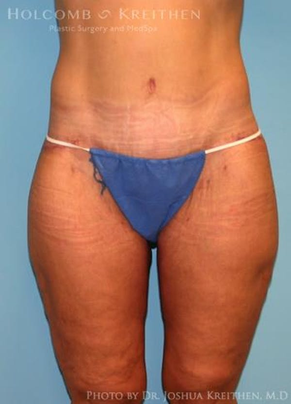 Lower Body Lift Gallery - Patient 6236517 - Image 2