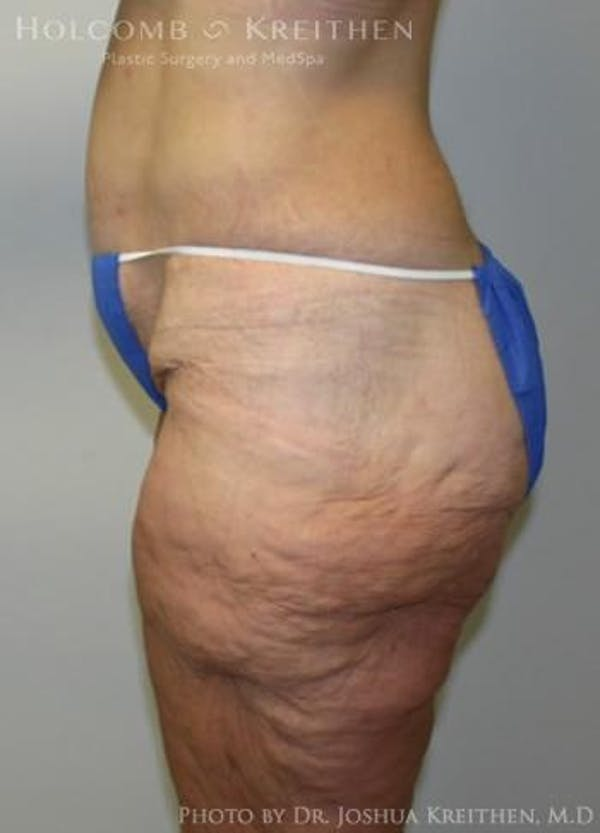 Lower Body Lift Gallery - Patient 6236517 - Image 3