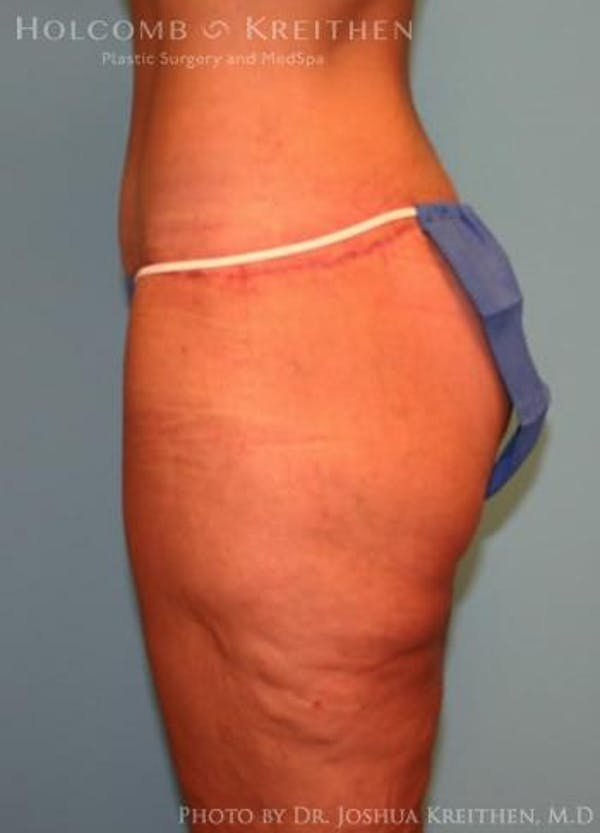 Lower Body Lift Gallery - Patient 6236517 - Image 4