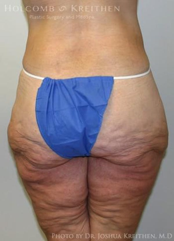 Lower Body Lift Gallery - Patient 6236517 - Image 5