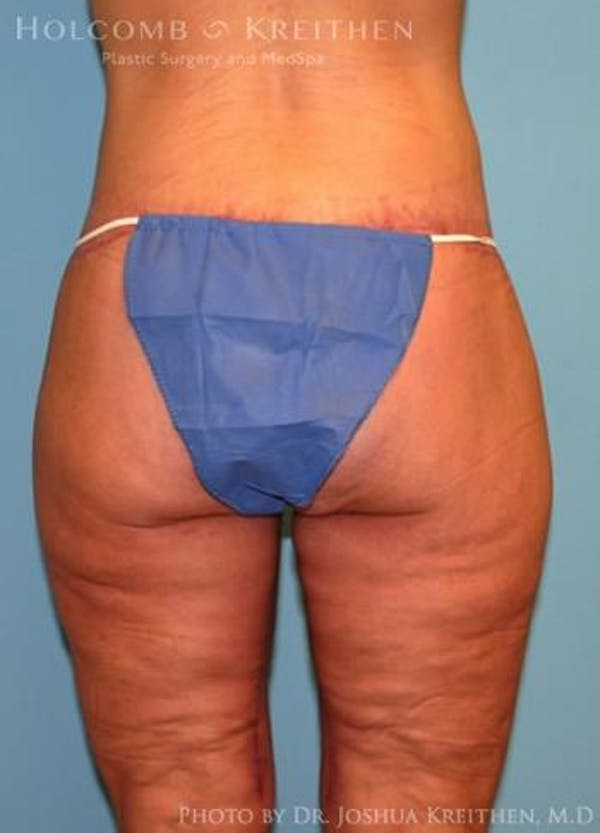 Lower Body Lift Gallery - Patient 6236517 - Image 6