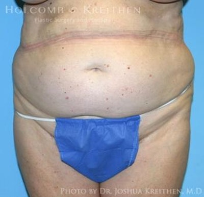 Liposuction Gallery - Patient 6236518 - Image 1