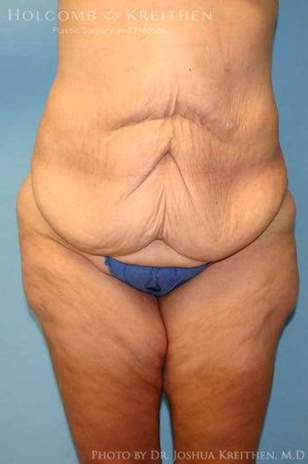 Lower Body Lift Gallery - Patient 6236519 - Image 1