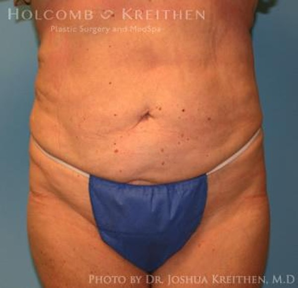 Liposuction Gallery - Patient 6236518 - Image 2