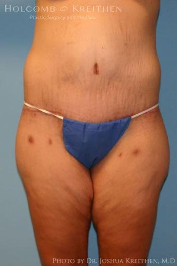 Lower Body Lift Gallery - Patient 6236519 - Image 2