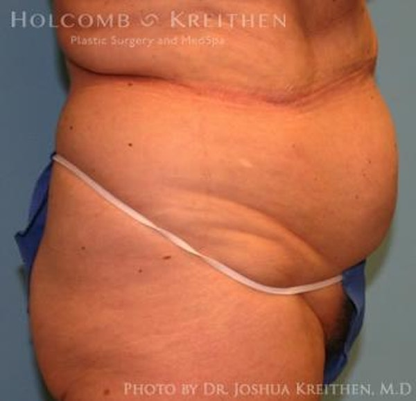 Liposuction Gallery - Patient 6236518 - Image 3