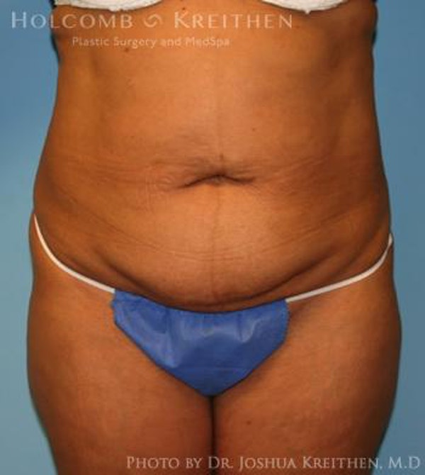 Mini Abdominoplasty Gallery - Patient 6236520 - Image 1