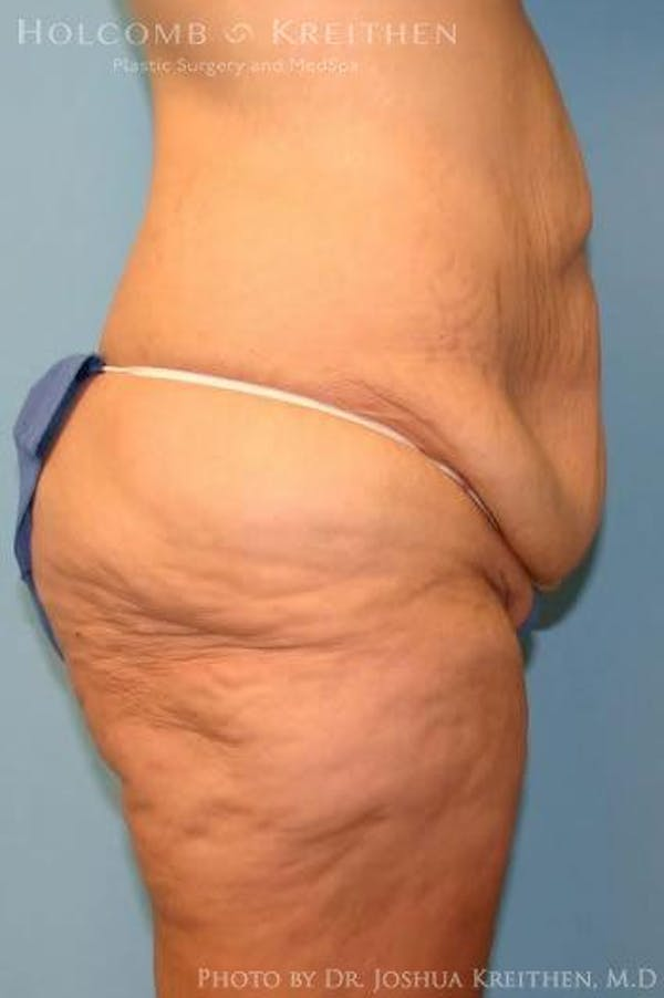 Lower Body Lift Gallery - Patient 6236519 - Image 3