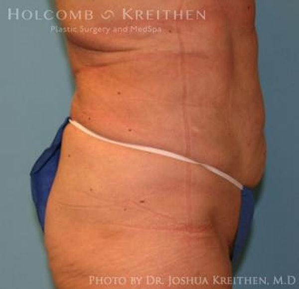 Liposuction Gallery - Patient 6236518 - Image 4