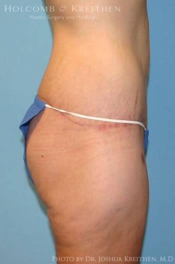 Lower Body Lift Gallery - Patient 6236519 - Image 4