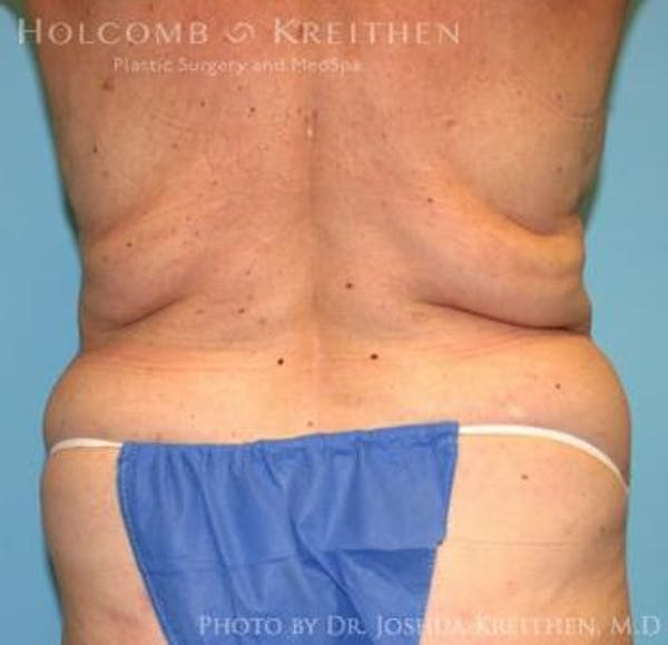 Liposuction Gallery - Patient 6236518 - Image 5