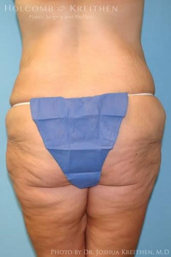 Lower Body Lift Gallery - Patient 6236519 - Image 5