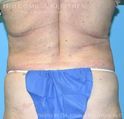 Liposuction Gallery - Patient 6236518 - Image 6