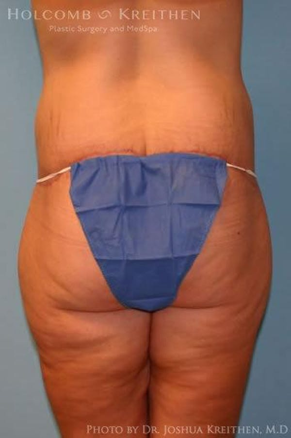 Lower Body Lift Gallery - Patient 6236519 - Image 6