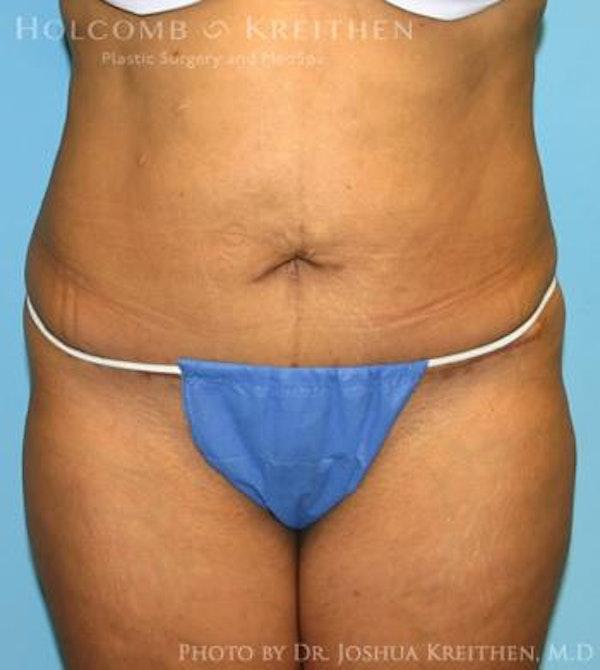 Mini Abdominoplasty Gallery - Patient 6236520 - Image 2