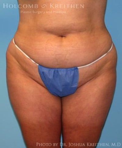 Liposuction Gallery - Patient 6236523 - Image 1
