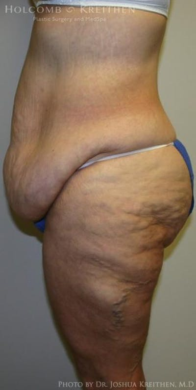 Lower Body Lift Gallery - Patient 6236521 - Image 3