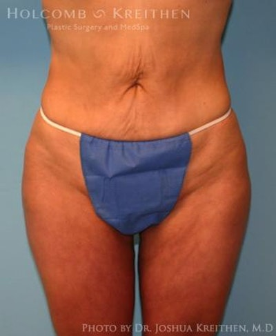 Liposuction Gallery - Patient 6236523 - Image 2