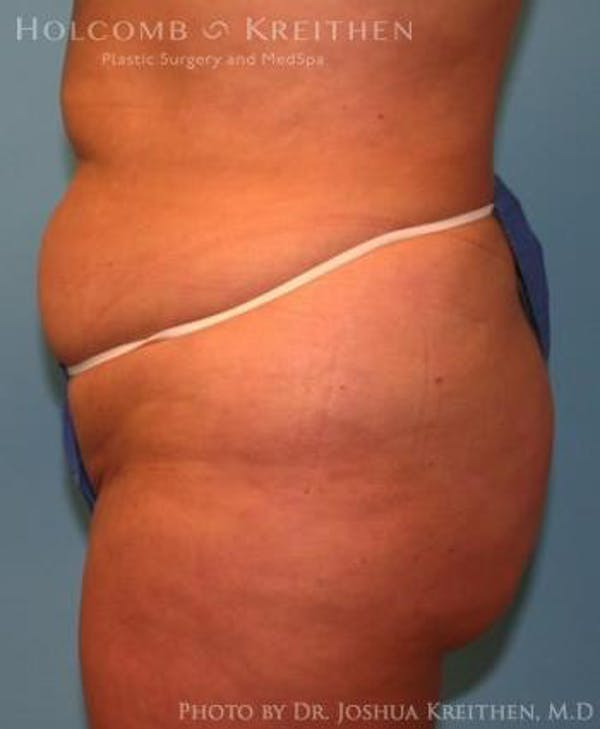 Liposuction Gallery - Patient 6236523 - Image 3