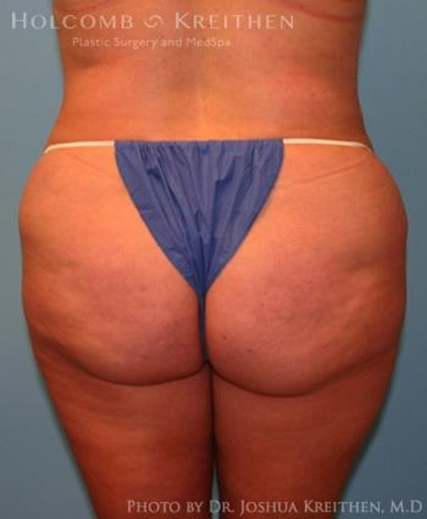 Liposuction Gallery - Patient 6236523 - Image 5