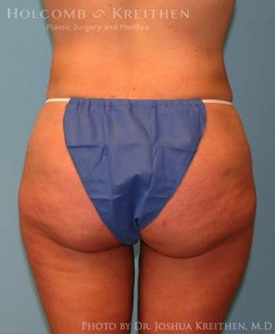 Liposuction Gallery - Patient 6236523 - Image 6