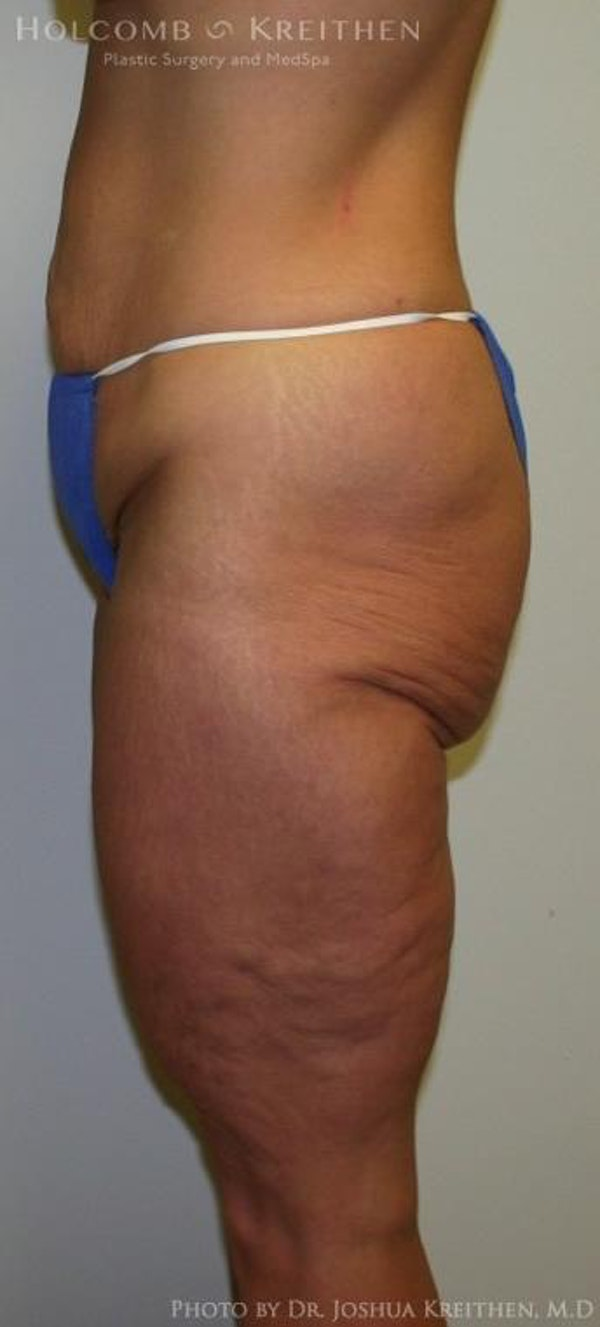 Lower Body Lift Gallery - Patient 6236527 - Image 1