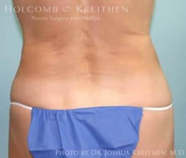 Liposuction Gallery - Patient 6236526 - Image 4