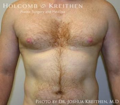 Liposuction Gallery - Patient 6236530 - Image 8