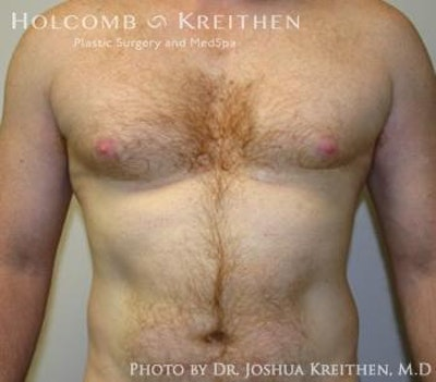 Liposuction Gallery - Patient 6236530 - Image 1