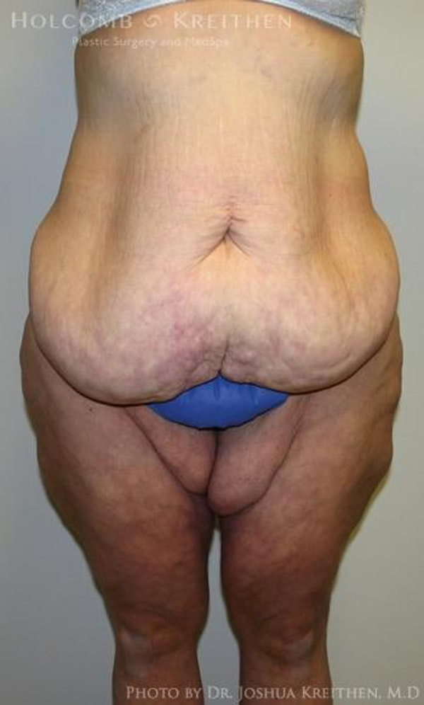 Lower Body Lift Gallery - Patient 6236528 - Image 1