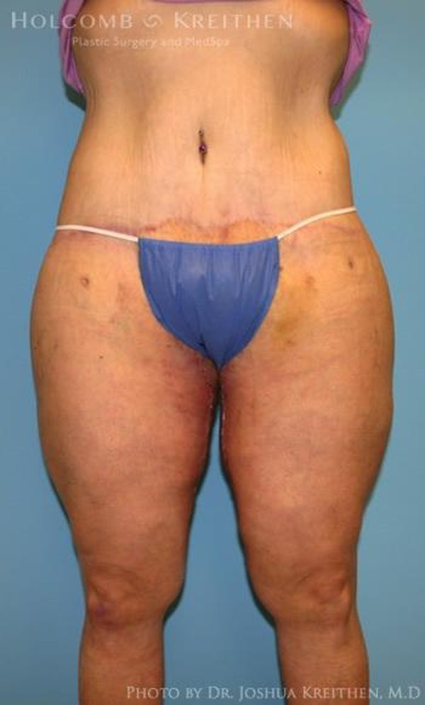 Lower Body Lift Gallery - Patient 6236528 - Image 2