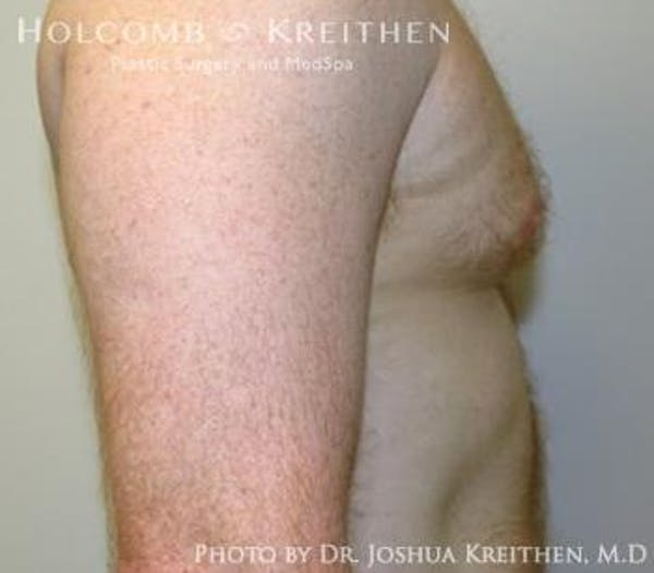 Liposuction Gallery - Patient 6236530 - Image 3