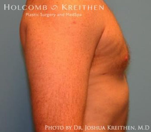 Liposuction Gallery - Patient 6236530 - Image 4